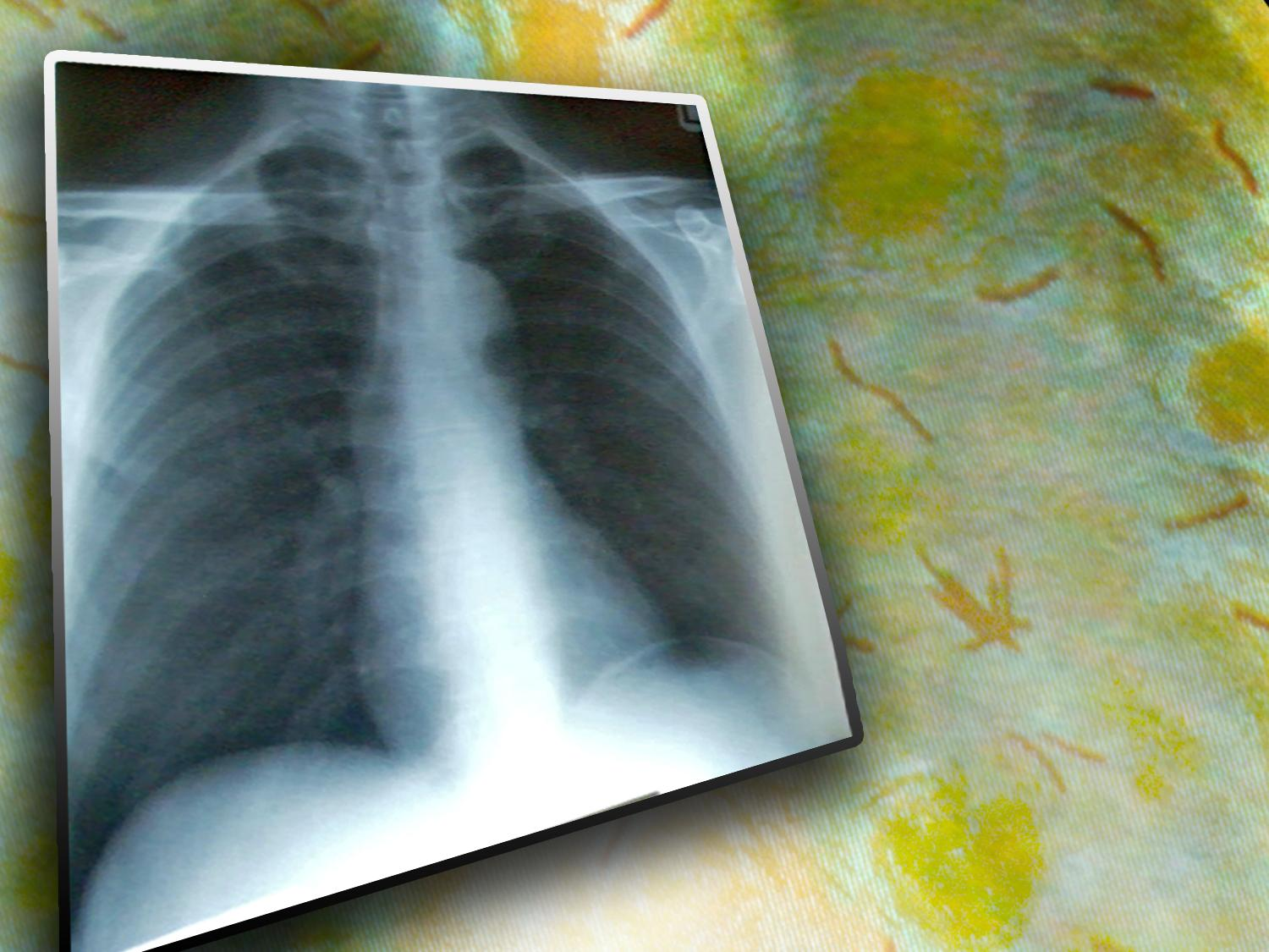 Tuberculosis chest x-ray_122386