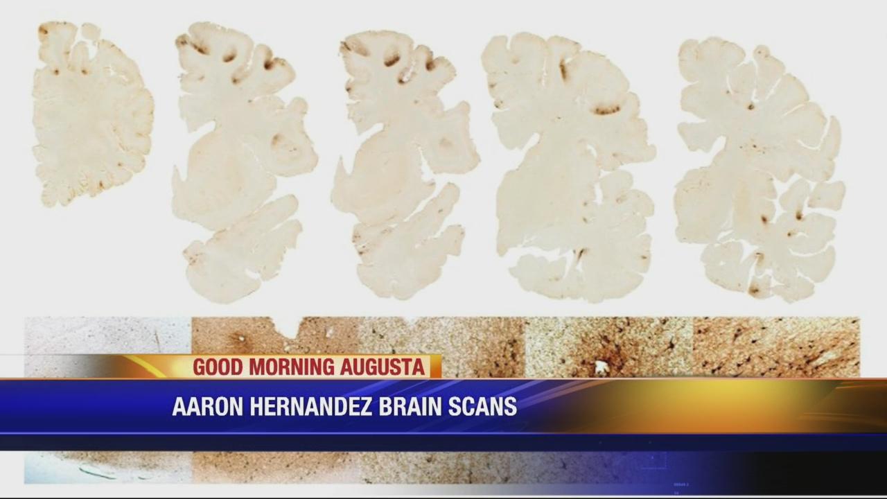 Brain scans of Aaron Hernandez