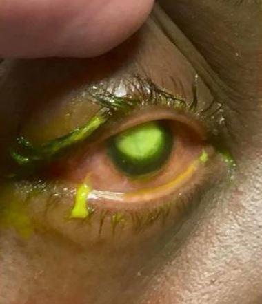 gross eye_1556909025932.JPG.jpg